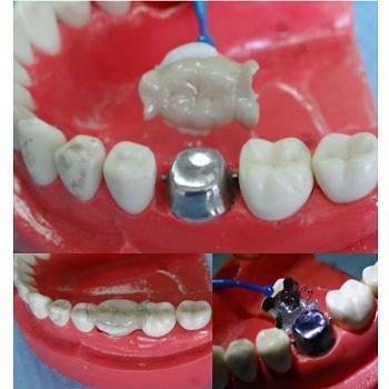 雙層活套冠衛生假牙